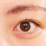 目が日焼けで痛いときの3つの対処!日焼けしないための対策とは